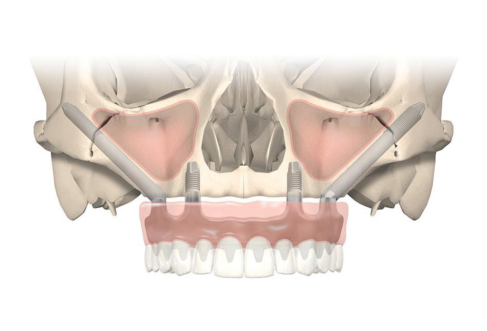 Dentista a Cagliari | Studio dentistico Cirillo