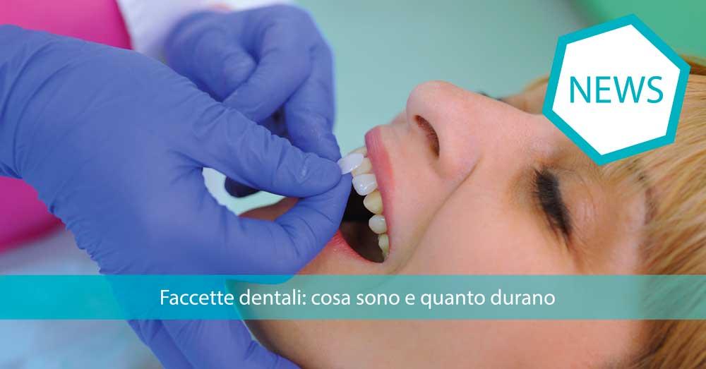faccette-dentali-cosa-sono-quanto-durano